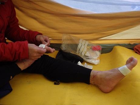 2015北方稜線kei (254)足の補修をする加藤直之